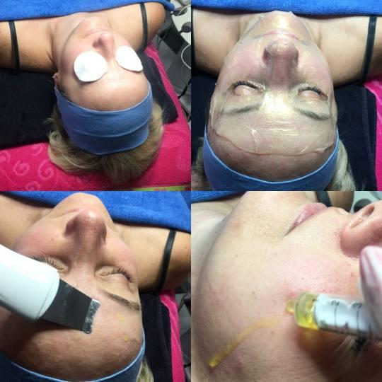 Fresh #sarajevo Tretman lica Dubinska hidratacija lica